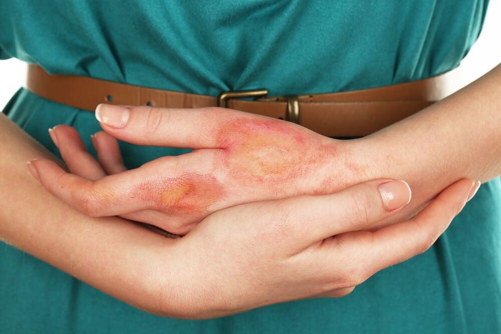 Mujer con mano quemada