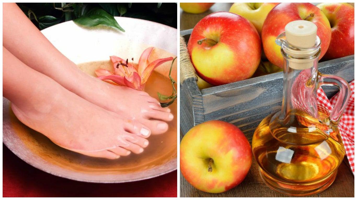 Vinagre de manzana para los pies