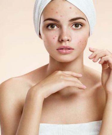 Chica preocupada por eliminar el acné