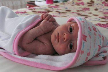 bebé con síndrome azul
