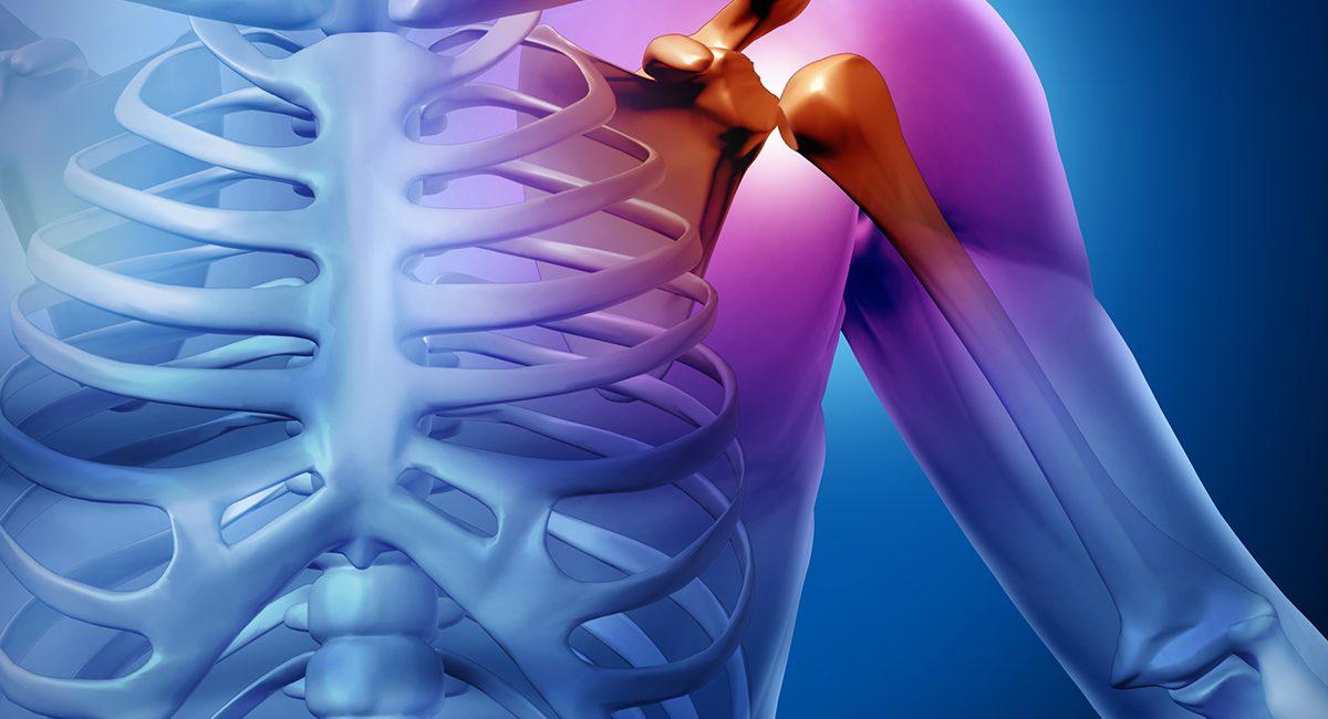 que sabes de la osteoporosis