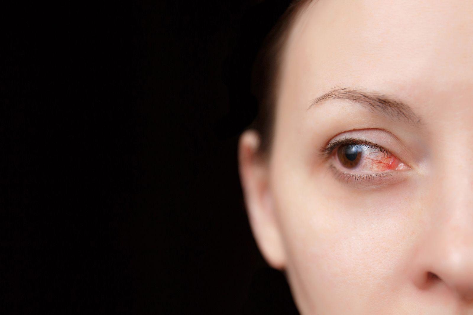 consecuencias del ojo vago