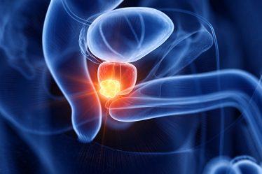 que sabes del cáncer de prostata